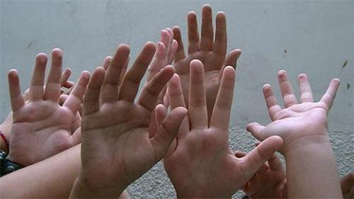 Un juzgado abrió la convocatoria nacional para la adopción de estos cinco hermanitos correntinos. La idea es no romper los vínculo parentales de los niños.